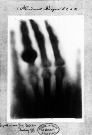 X-Ray of the Hand of Anna Berthe Röntgen